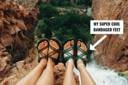 Feet dangling over a waterfall wearing Chacos sandals with bandages.